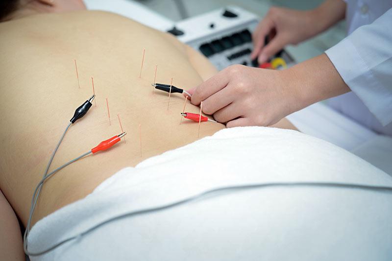 Elektro Akupunktur zur Allergie Behandlung